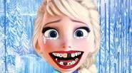¡Elsa tiene dolor de muelas! ¡Ayúdala y realiza una cirugía dental para recuperar su hermosa sonrisa! Controles del juego: Ratón